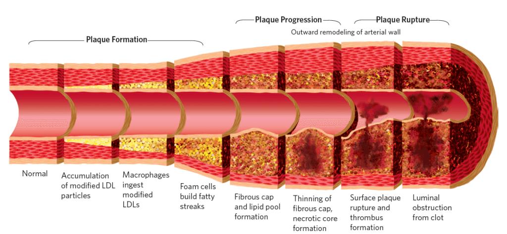 Plague2-1024x474