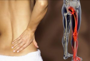 Image result for Sciatica Pains