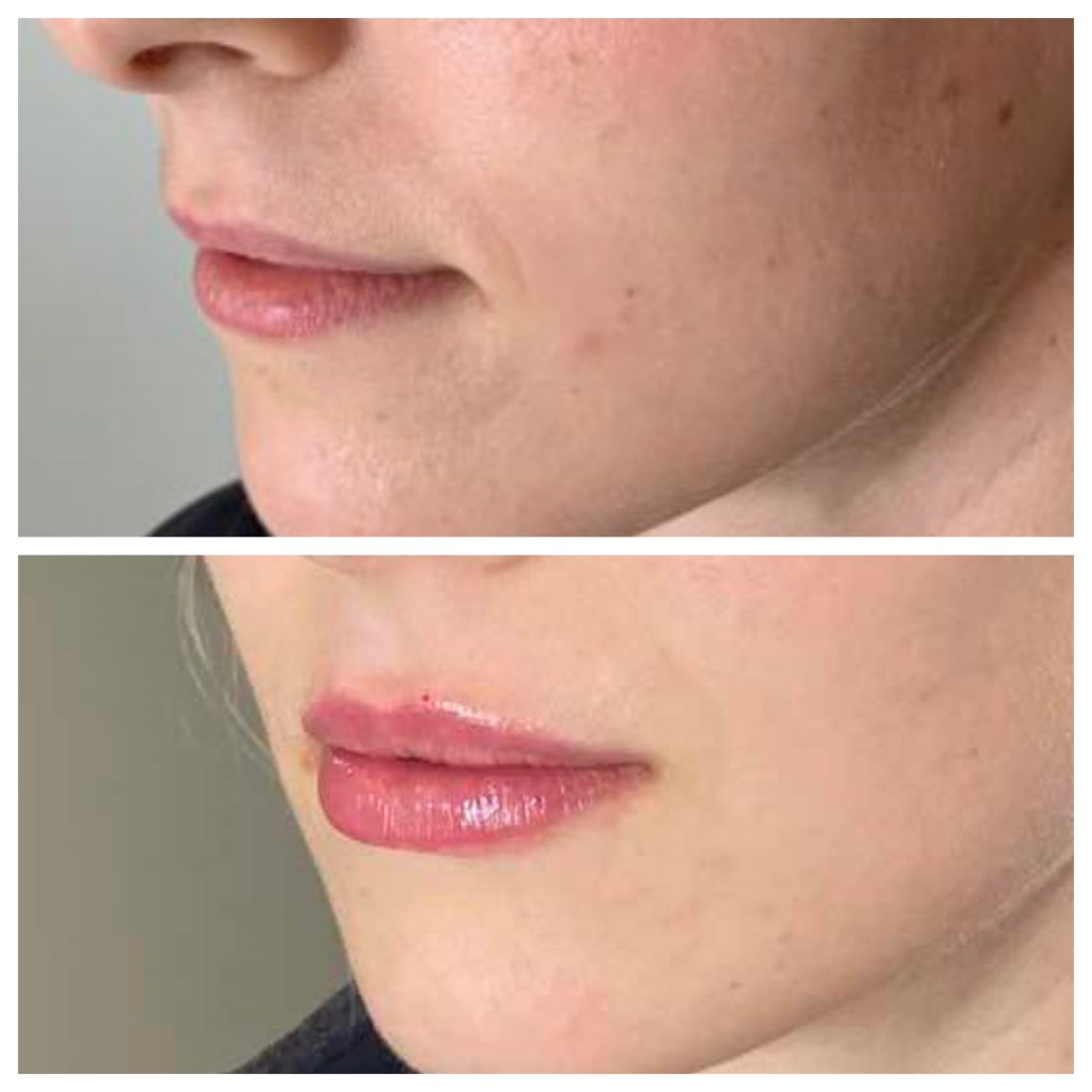 1ml filler,before and after