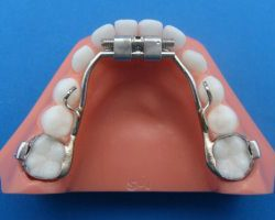 orthodontic appliance expander