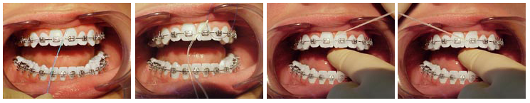 orthodontic treatment maintenance