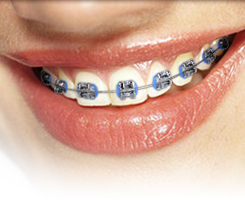 Affordable Braces - Types Of Braces We Offer In Augusta And