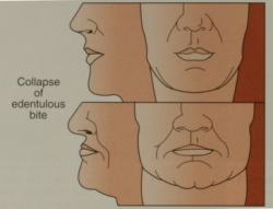facial collapse diagram