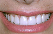 Porcelain veneers after picture from Colorado Springs dentist Dr. Joseph Rota.