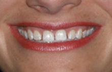Porcelain veneers before picture from Colorado Springs dentist Dr. Joseph Rota.