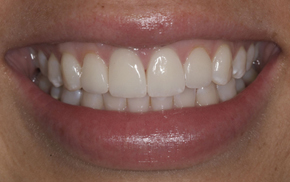 Porcelain veneers close-up after photo of patient A from Colorado Springs dentist Dr. Joseph Rota.