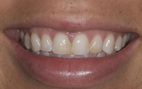 Porcelain veneers close-up before photo of patient A from Colorado Springs dentist Dr. Joseph Rota.