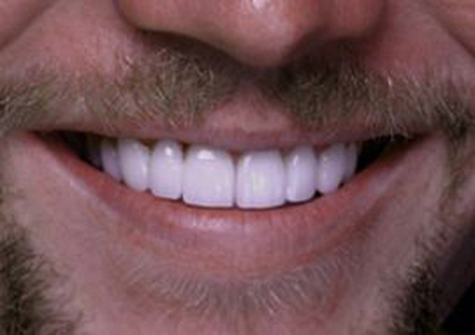 After porcelain veneers close-up picture from the smile gallery of Colorado Springs dentist Dr. Joseph Rota (br).