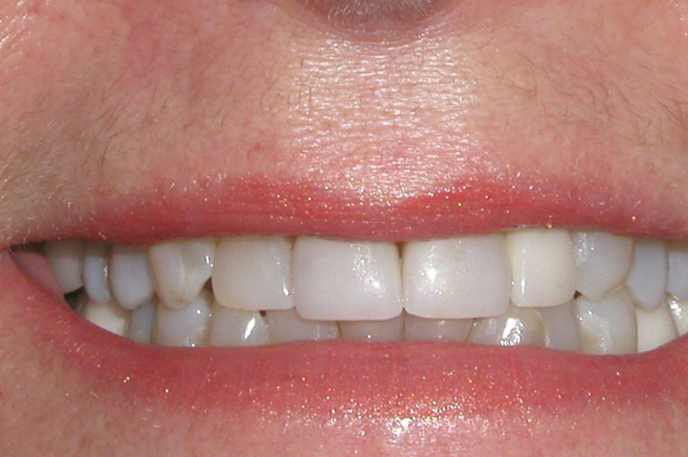 Before porcelain veneers close-up picture from the smile gallery of Colorado Springs dentist Dr. Joseph Rota (bi).