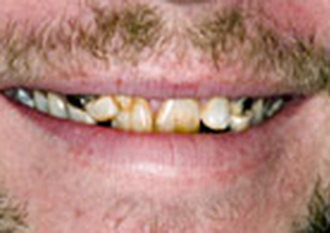 Before porcelain veneers close-up picture from the smile gallery of Colorado Springs dentist Dr. Joseph Rota (br).