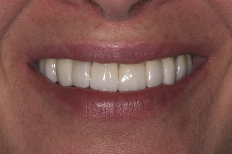 After close-up picture of porcelain veneers from Colorado Springs dentist Dr. Joseph Rota. Smile gallery - am