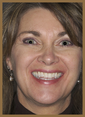 CEREC crowns full-face before photo of patient (Sta) for the smile gallery of Colorado Springs dentist Dr. Joseph Rota.
