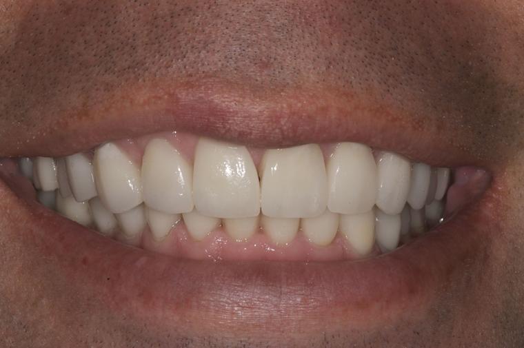 colorado-springs-teeth-contouring-cs-after1-closeup