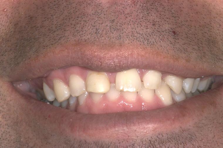 colorado-springs-teeth-contouring-cs-before-closeup