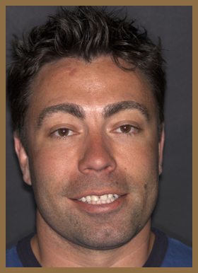 colorado-springs-teeth-contouring-cs-before