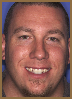 Veneers full-face before photo of patient (Xav) for the smile gallery of Colorado Springs dentist Dr. Joseph Rota.