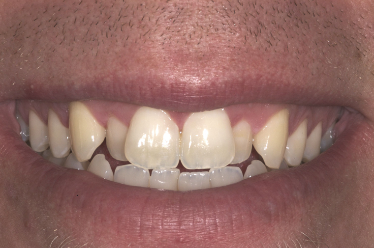 Before close-up picture of porcelain veneers from Colorado Springs dentist Dr. Joseph Rota. Smile gallery - am
