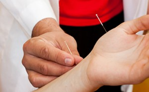 acupuncture fort collins loveland