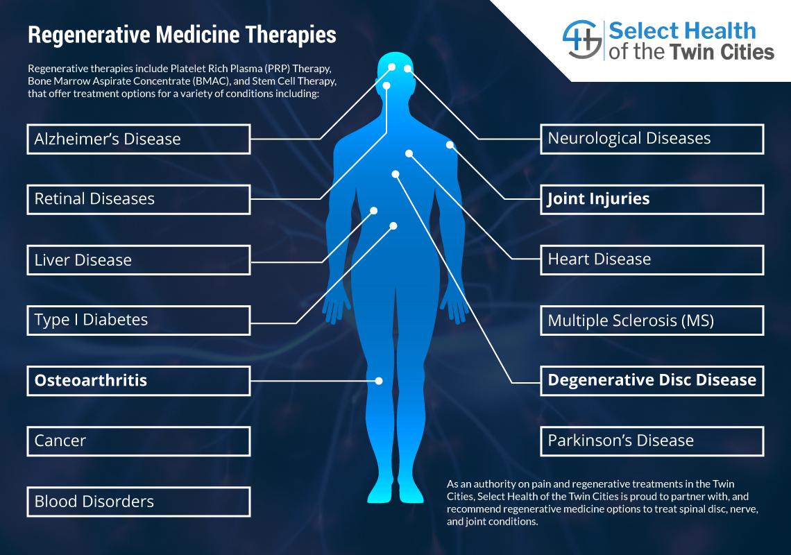 Regenerative Medicine Therapies