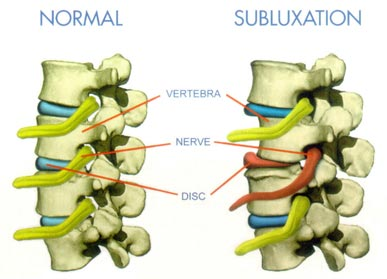 what-is-subluxation