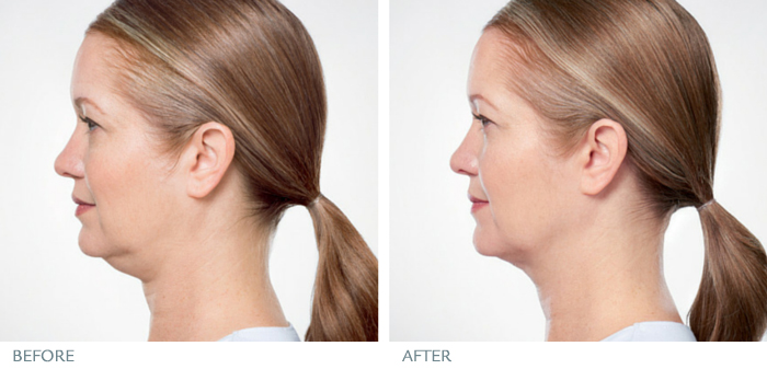 Unretouched photos taken before the fist and after the last treatment session. Individual results may vary.