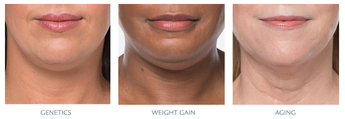 Kybella three reasons
