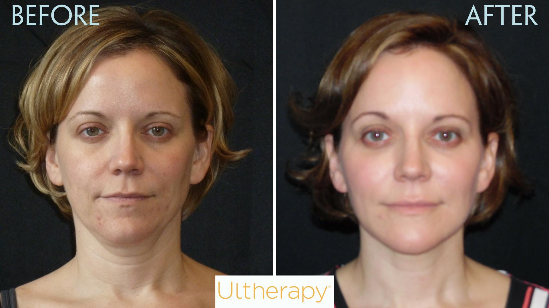 Ultherapy - Lift And Tighten Skin   Senara Health And Healing Center