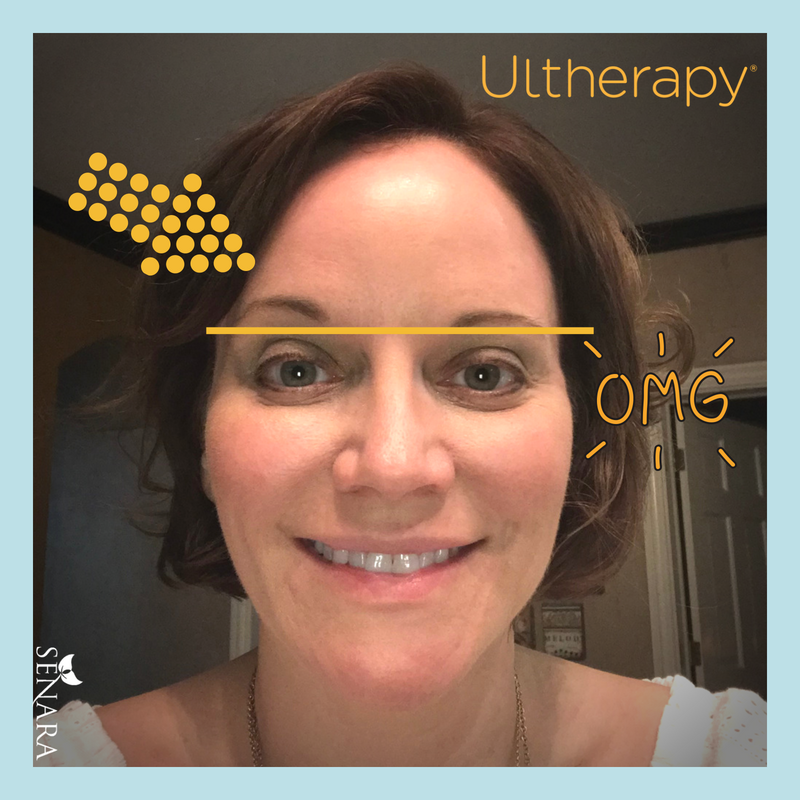 Ultherapy - Lift And Tighten Skin | Senara Health And Healing Center