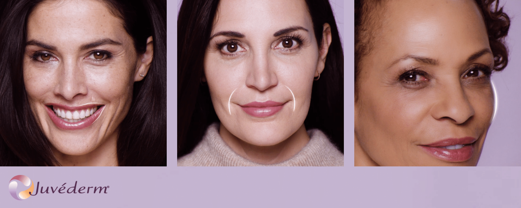 Juvederm - Smooth Fine Lines Around Your Mouth | Senara Health And