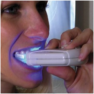 Personal Teeth Whitening