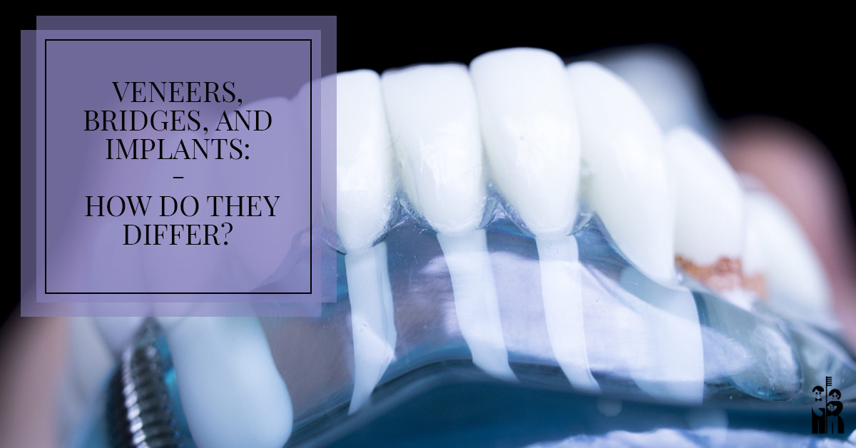 Veneers Bridges and Implants