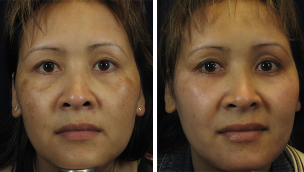 Patients before and after of laser skin treatment in Edina.