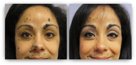 Non Surgical Mole Removal Minneapolis Skin Rejuvenation