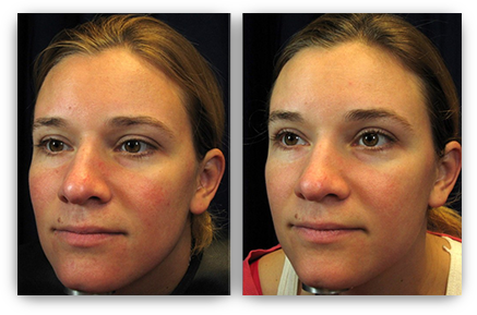 Treatment information facial rosacea things