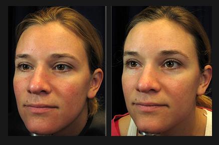 Rosacea Treatment Minneapolis Laser Treatment 55435 Laser Vein