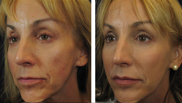 Fillers: Juvederm - Liquid Lift Lips pluming Cheek filler