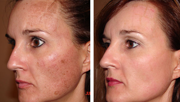 Age Spot Removal Gallery Skin Rejuvenation Clinic