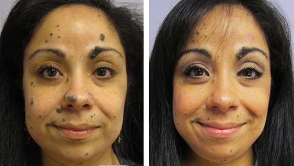 Laser Skin Rejuvenation Gallery Skin Rejuvenation Clinic