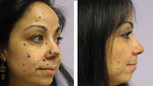 Clear difference deep pore purifying facial
