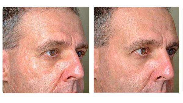 chatswood clinic Facial rejuvenation