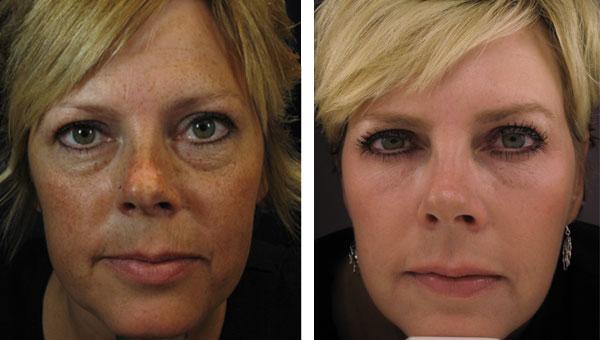 Dark Circles Under Eyes Gallery | Skin Rejuvenation Clinic