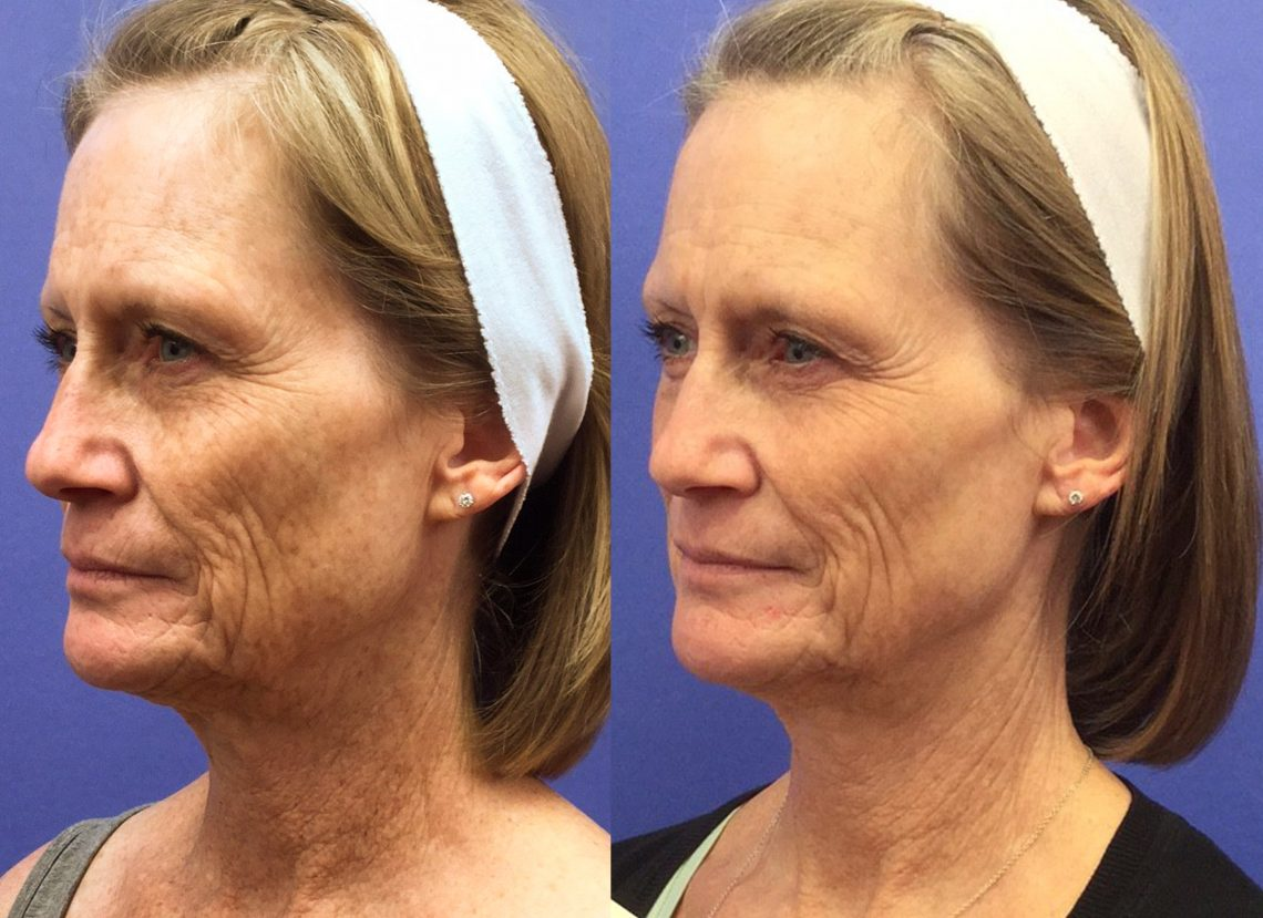 3 weeks After Halo Laser Face + BBL Face and Neck *results may vary