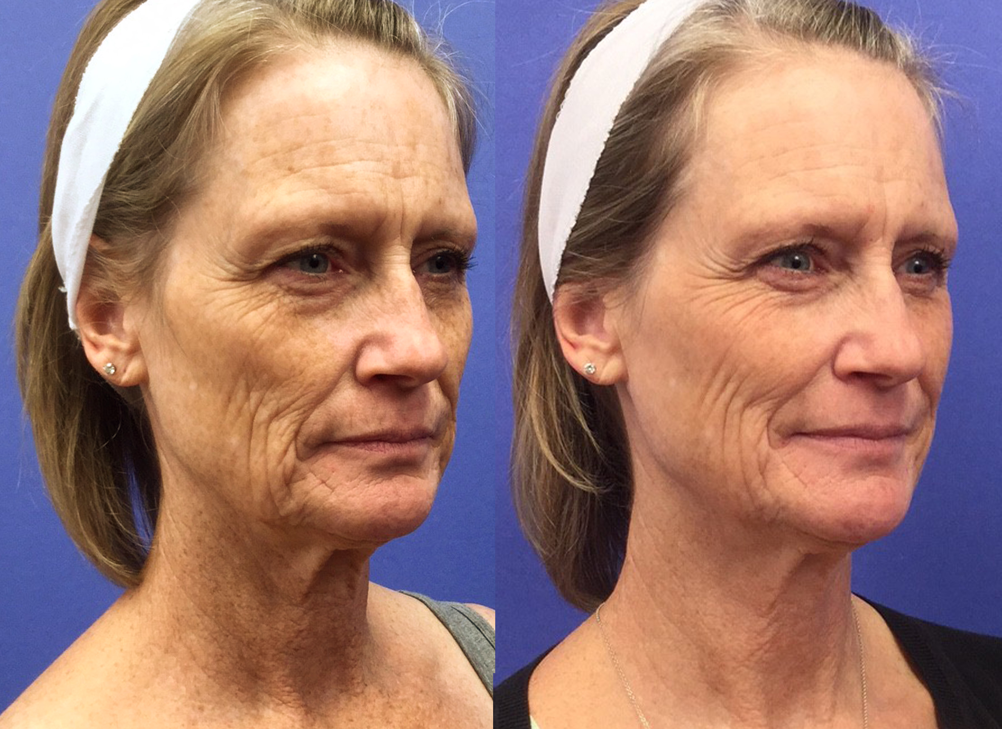 Before Amp After Photo Gallery Skin Rejuvenation Clinic