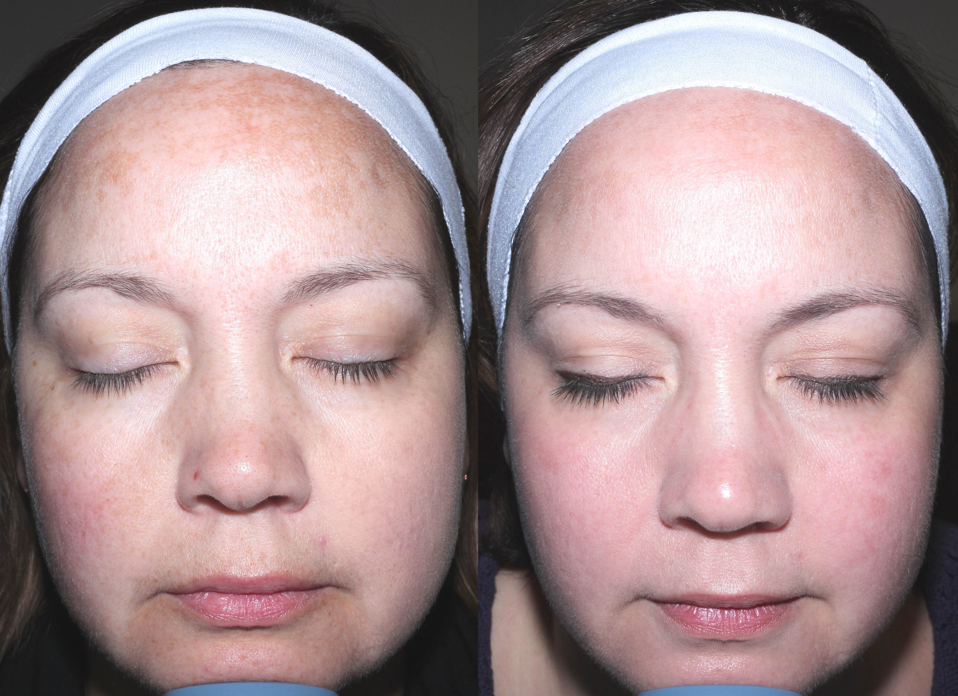 After Facial and resurfacing before