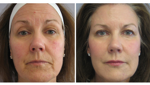 Image result for wrinkle before and after