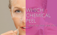 chemical peels marietta georgia