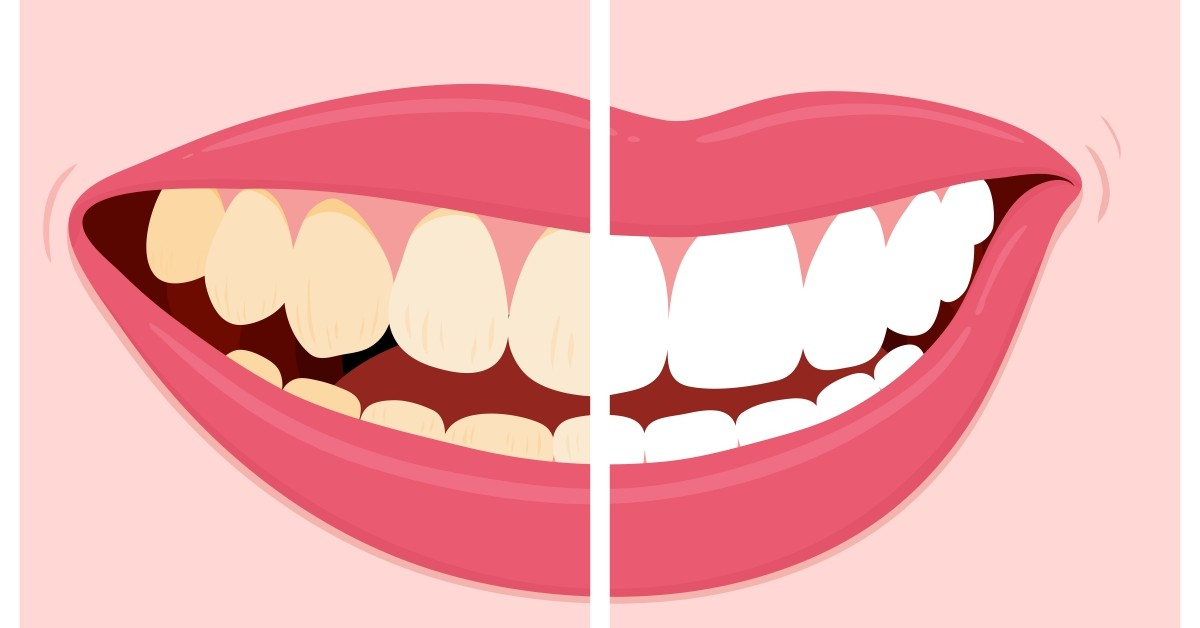 5 Cosmetic Dentistry Procedures That Can Improve Your Smile featured image