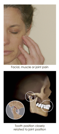 jaw-joint-problems-250x564