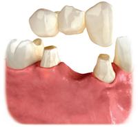 dental-bridge-annapolis