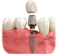 dental-implant-annapolis
